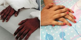 Pune-Woman-Undergoes-first-male-to-female-double-hand-transplant-in-Amrita-Hospital-01