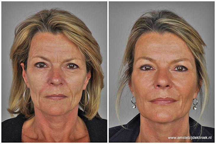 Voor en na fotos liquid facelift Amstelzijde Kliniek