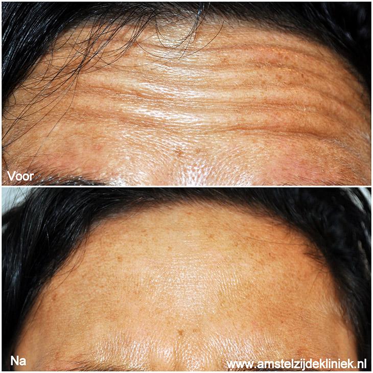 Voorhoofdsrimpels verwijderen met Botox