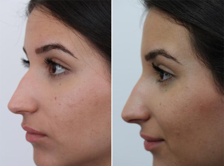 bobbel op neus verwijderen
