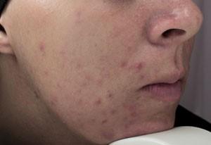 De patient heeft ernstige acne en wilt ervan komen.