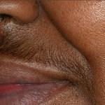 Een laserbehandeling voor de donkere huid