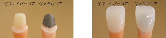 ファイバーコアとメタルコア(銀色)の光の透過性の違い②