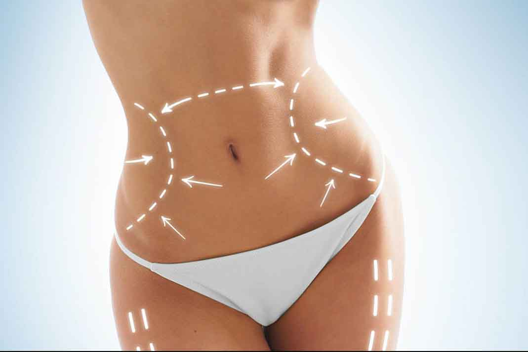 El exceso de piel que te queda después de perder peso, tiene remedio.