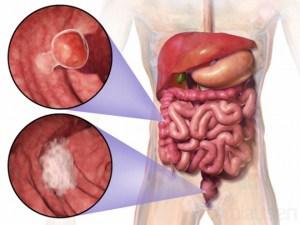 大腸ガンと性格スピリチュアルな意味 八戸整体関連ブログより