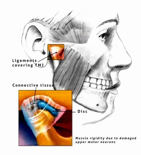顎関節症整体の効果です。