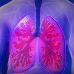 肺がふくらまない症例報告|息が苦しい|姿勢を保てない