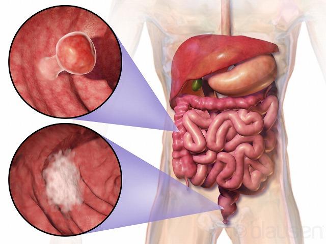 大腸ガンと性格スピリチュアル