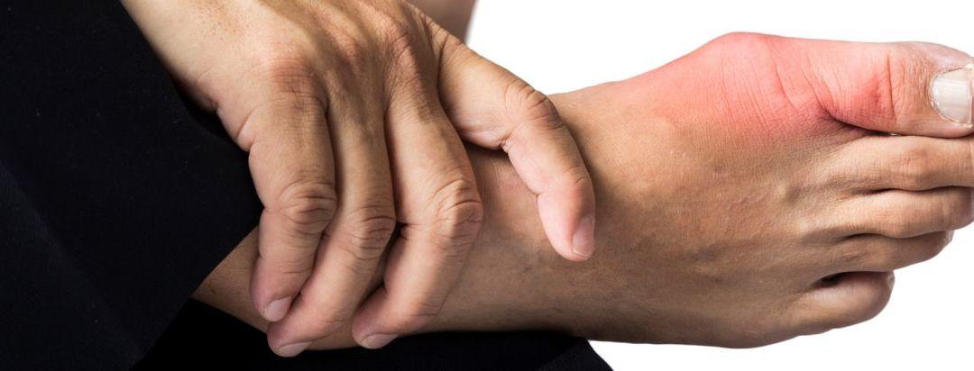 Fahami Penyakit Gout ~ Kenali Petanda Awal Penyakit Gout