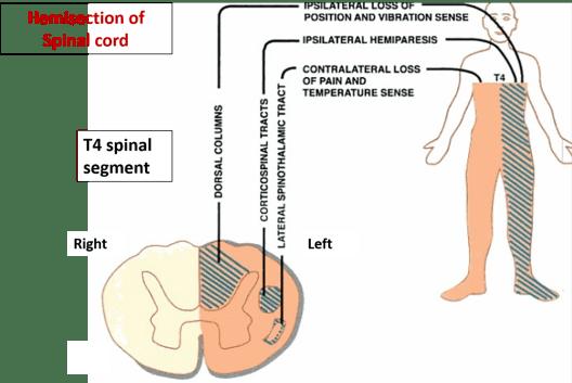 Brown-Sequard syndrome- symptoms , anatomical basis