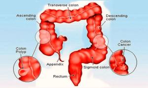 Cancer   Anatomy System  Human Body Anatomy diagram and