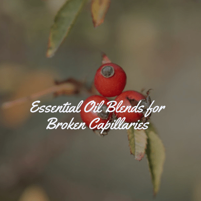 Essential Oils and Blends for Broken Capillaries