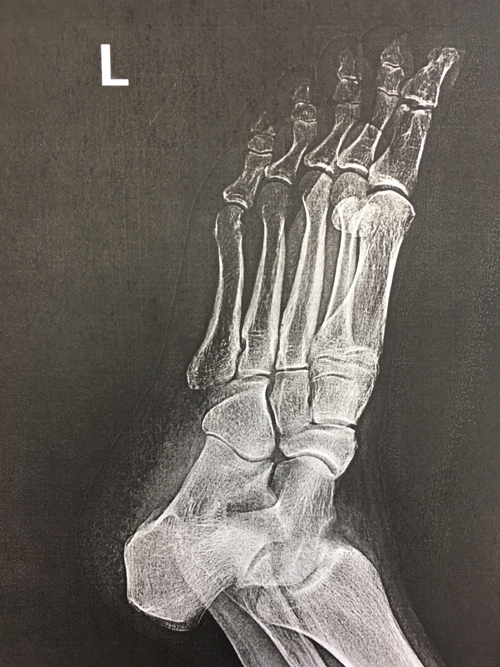 E-Ray of Left Foot