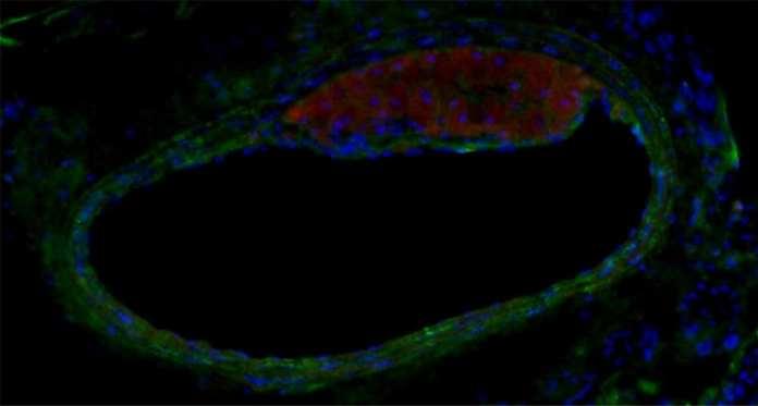 neuropeptido aterosclerosis