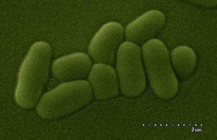 Lactobacilo visualizado al microscopio óptico de barrido (CSIC)