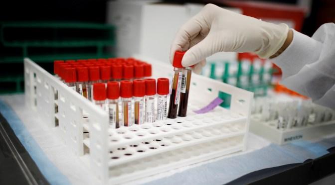 Estudios sugieren que las personas de un cierto grupo sanguíneo pueden tener menor riesgo de contraer covid-19