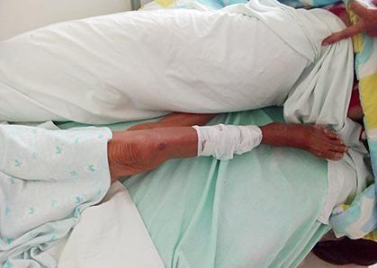 Una mujer masacra a palos a una anciana, la acusó de haberse comido a su oveja
