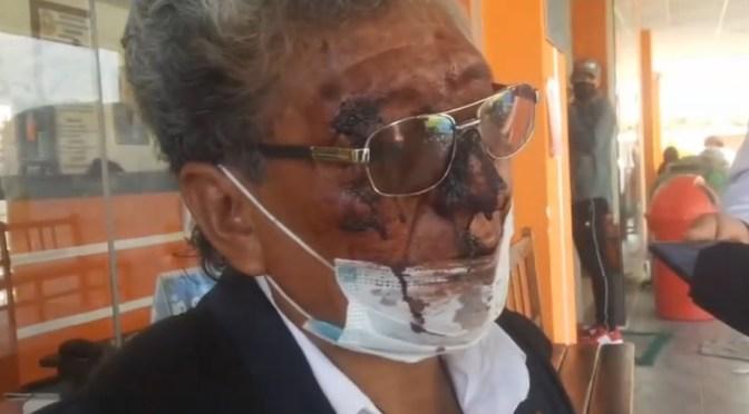 Agreden a la persona que lanzó un tomate al alcalde Reyes Villa en Cochabamba