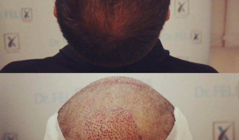Dr. Felix Hair Implant