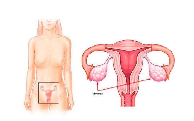 Аналық без көпжолықтары: белгілер, диагностика, емдеу, жүктілік