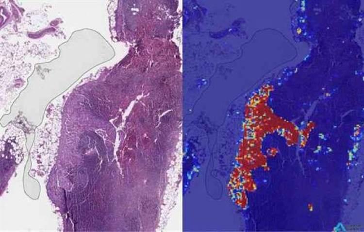 Google AI pode detectar cancro da mama em estado avançado de forma mais eficaz do que os seres humanos 1