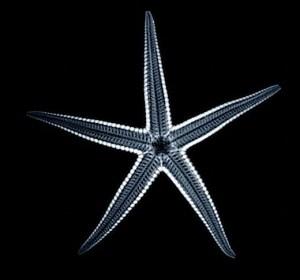 Αστερίας σε ακτινογραφία