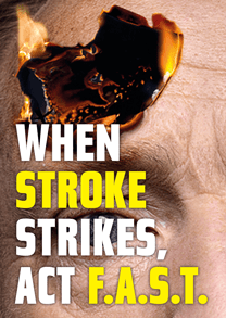I had a stroke (Part 1): It could have been the worst of times but it wasn't thanks to our NHS