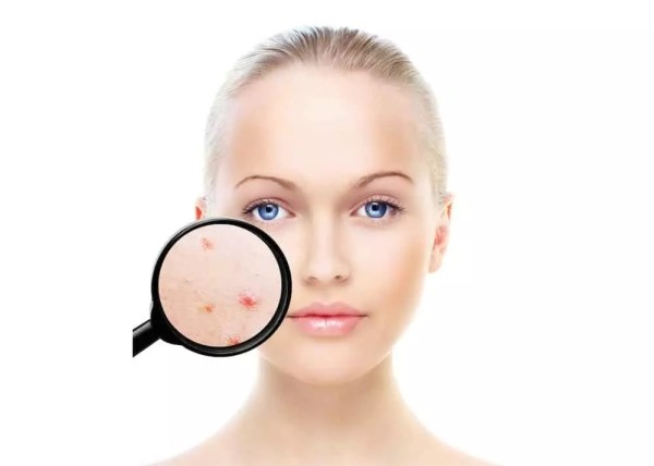 acne treatment stourbridge hagley birmingham