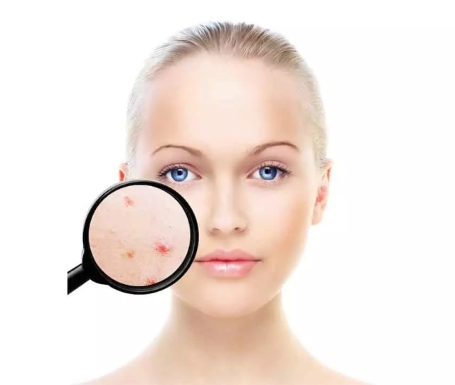 Acne Treatment Stourbridge Hagley Birmingham