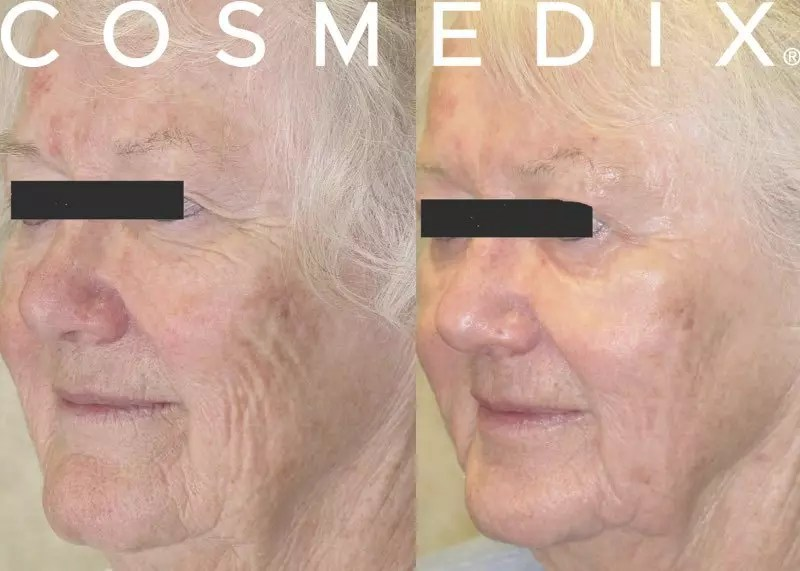 cosmedix benefit peel before after