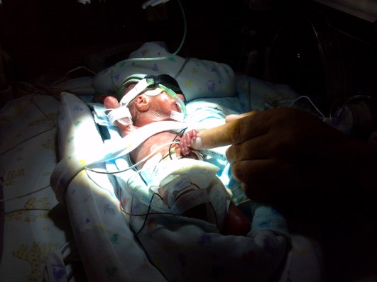 premature baby born at 23 weeks