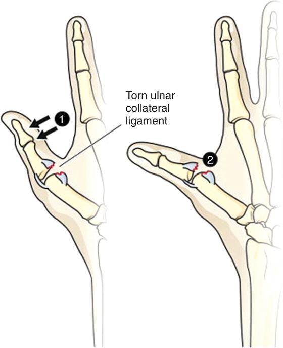 Ulnar Tear Thumb Ligament