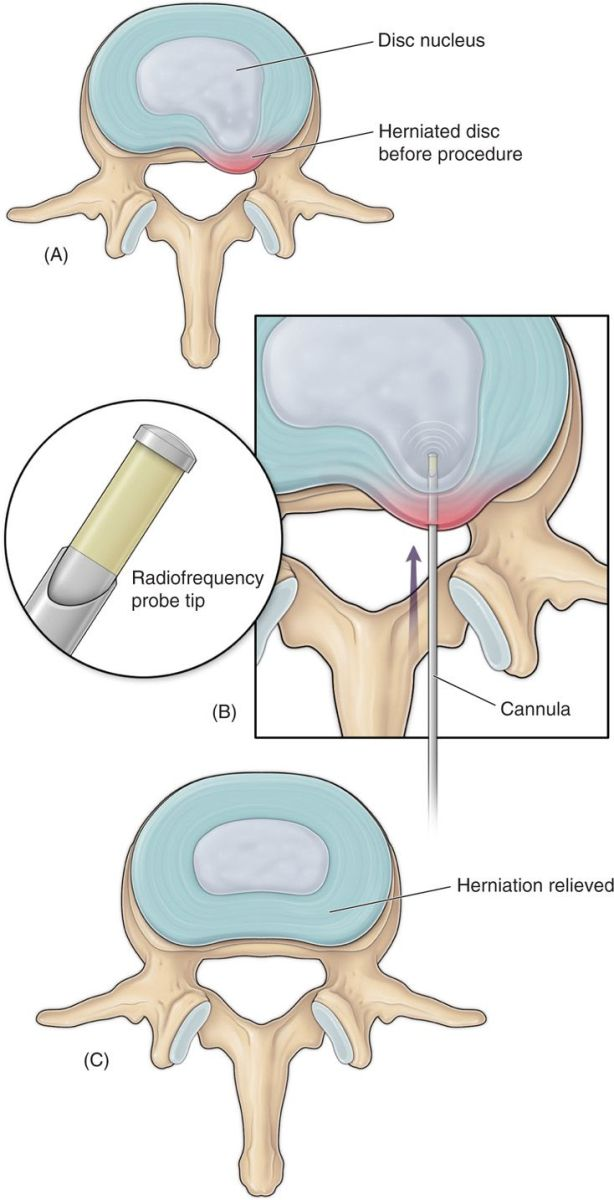 Percutaneous Disc Decompressions Anesthesia Key