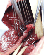 Chapter 18 – Thoracic Esophagus