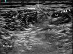Femoral Cutaneous Nerve