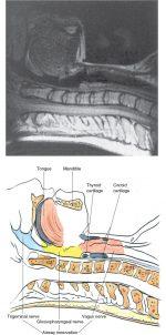 Airway block anatomy