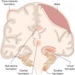 Coma and depressed sensorium