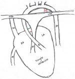 Cardiac Emergencies in Kids