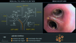 Separation of the Lung: Double-Lumen Endotracheal Tubes and Endobronchial Blockers