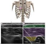 Postthoracotomy Chronic Pain