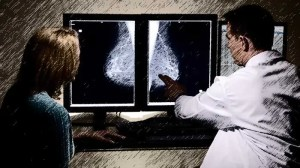 mammogramme 300x1681 DIAGNOSIS: Breast Cancer