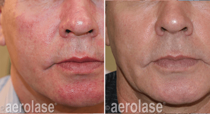 LightPod Lasers Deliver The Highest Power For Aesthetic