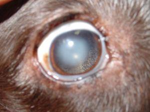 Lenticular sclerosisv