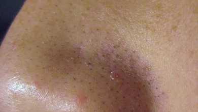 Photo of طريقة ازالة الرؤوس السوداء من الوجه