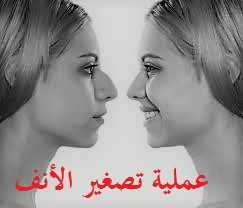 Photo of تصغير الأنف العريض بالخيوط