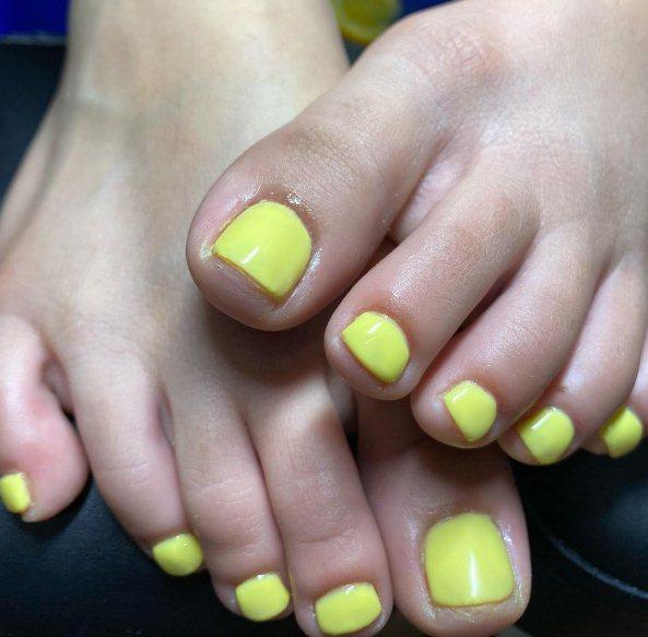 7. Vibrant Yellow Toenails