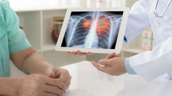 akciger kanseri nedir belirtileri ve tedavi yontemleri