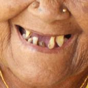 Gammel, nepalesisk mund