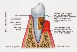 periodontitis_illustration