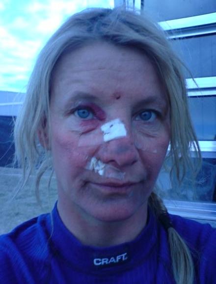 Annies broken nose